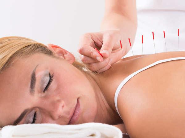 Safe Acupuncture Needles